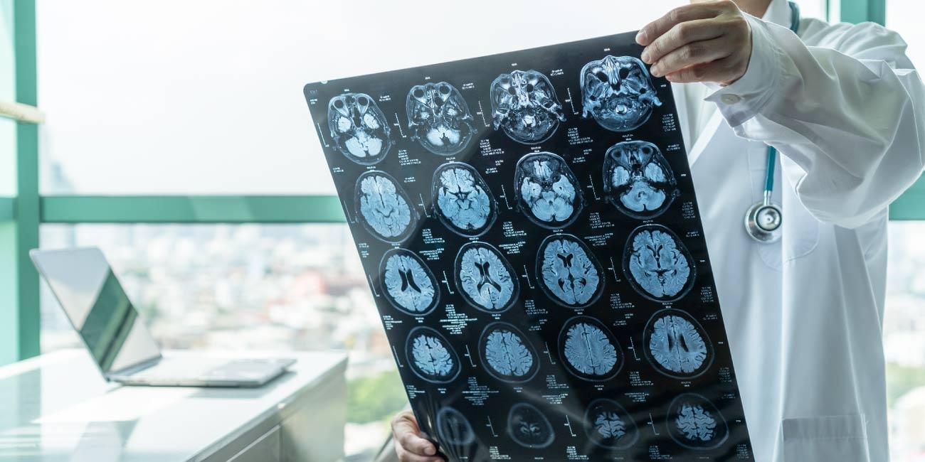 Ressonância Magnética de Crânio para diagnóstico preciso!